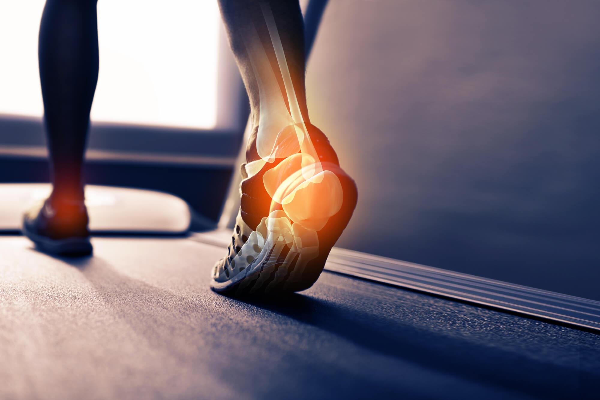 Läufer-auf-Laufband-Fuß-Gelenke-Laufschuhe