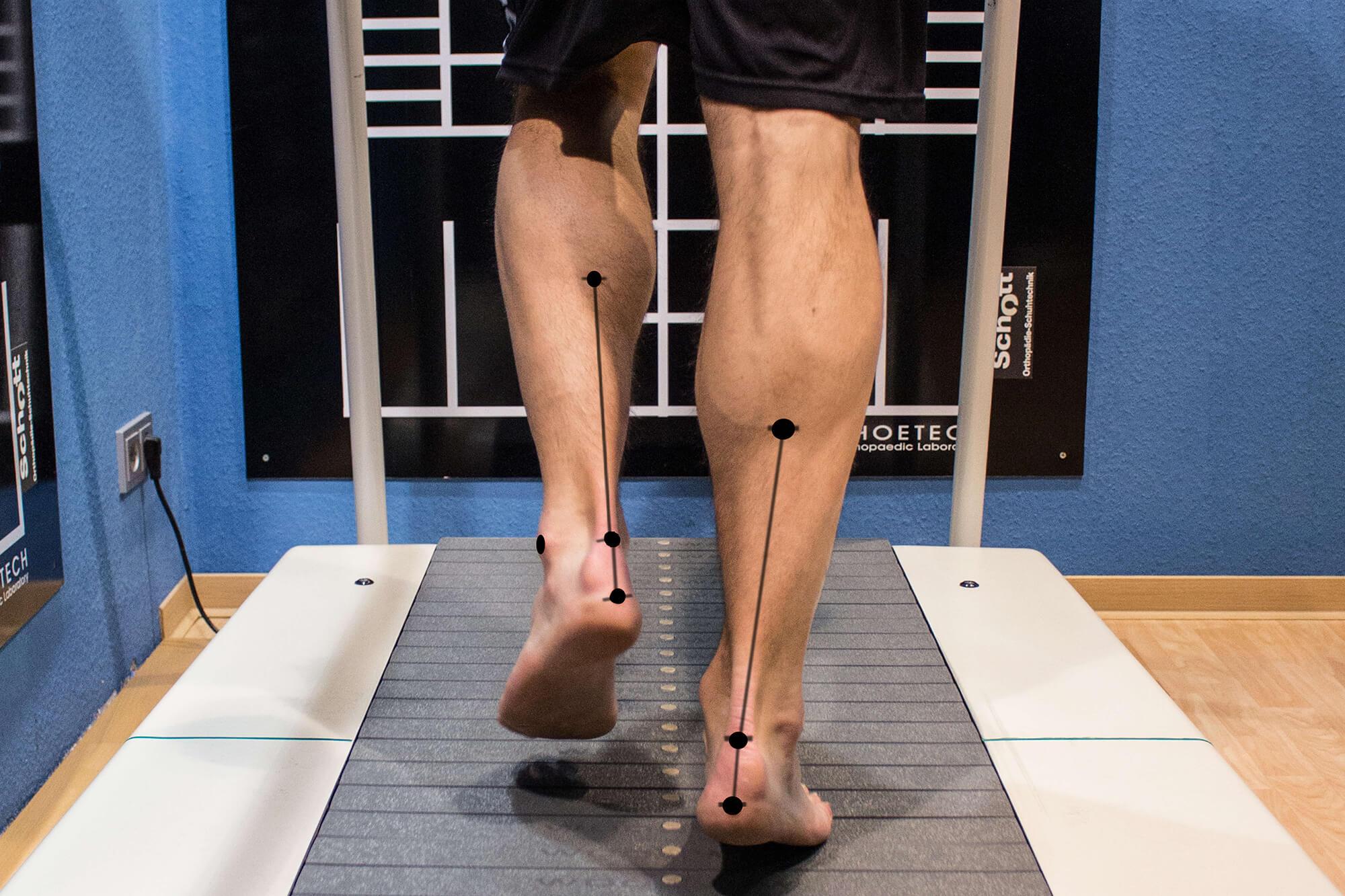 Laufanalysen-Ansicht der Beinachsen